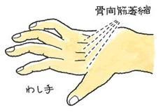 骨間筋萎縮を起こした後の手の鷲手変形