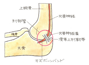 尺骨神経が、肘部管というトンネルの中で絞扼・圧迫されているもの