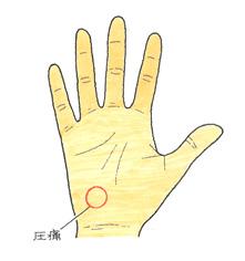 手のひらの圧痛