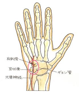 有鈎骨の骨折によるギオン管症候群