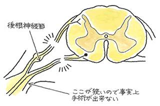 後根神経節