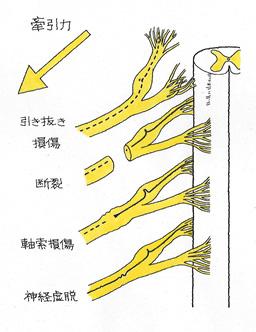 脊髄から神経根が引き抜かれる損傷