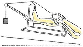 直達牽引+ギプス固定の保存療法
