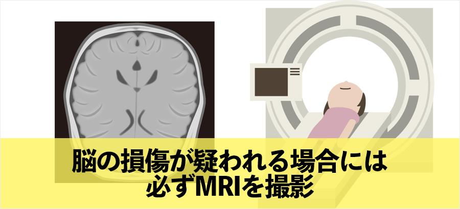 脳の損傷が疑われる場合は必ずMRI検査をしましょう